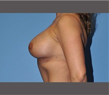 Breast Augmentation After Photo by Robert Wilcox, MD; Plano, TX - Case 30133