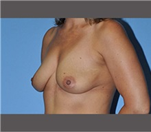 Breast Augmentation Before Photo by Robert Wilcox, MD; Plano, TX - Case 30133