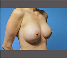 Breast Augmentation After Photo by Robert Wilcox, MD; Plano, TX - Case 30134