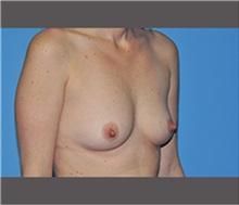 Breast Augmentation Before Photo by Robert Wilcox, MD; Plano, TX - Case 30134