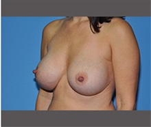 Breast Augmentation After Photo by Robert Wilcox, MD; Plano, TX - Case 30138