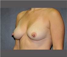 Breast Augmentation Before Photo by Robert Wilcox, MD; Plano, TX - Case 30138