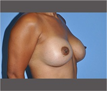 Breast Augmentation After Photo by Robert Wilcox, MD; Plano, TX - Case 30141