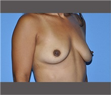 Breast Augmentation Before Photo by Robert Wilcox, MD; Plano, TX - Case 30141