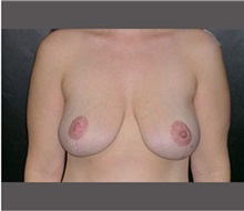 Breast Lift After Photo by Robert Wilcox, MD; Plano, TX - Case 30145