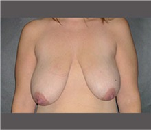 Breast Lift Before Photo by Robert Wilcox, MD; Plano, TX - Case 30145