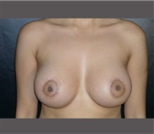 Breast Lift After Photo by Robert Wilcox, MD; Plano, TX - Case 30146