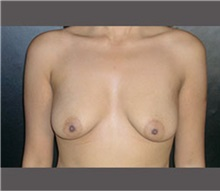 Breast Lift Before Photo by Robert Wilcox, MD; Plano, TX - Case 30146