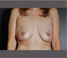 Breast Lift After Photo by Robert Wilcox, MD; Plano, TX - Case 30148