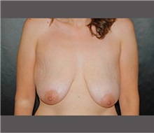 Breast Lift Before Photo by Robert Wilcox, MD; Plano, TX - Case 30148