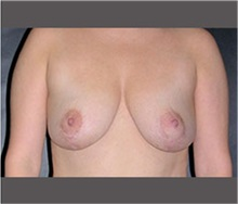 Breast Lift After Photo by Robert Wilcox, MD; Plano, TX - Case 30150