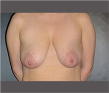 Breast Lift Before Photo by Robert Wilcox, MD; Plano, TX - Case 30150