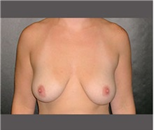 Breast Lift Before Photo by Robert Wilcox, MD; Plano, TX - Case 30151