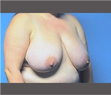 Breast Reduction Before Photo by Robert Wilcox, MD; Plano, TX - Case 30152