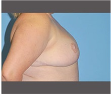 Breast Reduction After Photo by Robert Wilcox, MD; Plano, TX - Case 30152