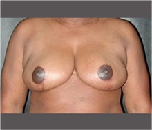 Breast Reduction After Photo by Robert Wilcox, MD; Plano, TX - Case 30153