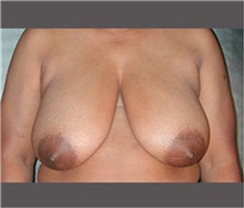 Breast Reduction Before Photo by Robert Wilcox, MD; Plano, TX - Case 30153