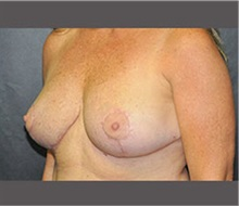 Breast Reduction After Photo by Robert Wilcox, MD; Plano, TX - Case 30155