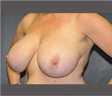 Breast Reduction Before Photo by Robert Wilcox, MD; Plano, TX - Case 30155