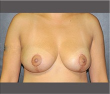 Breast Reduction After Photo by Robert Wilcox, MD; Plano, TX - Case 30156