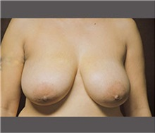 Breast Reduction Before Photo by Robert Wilcox, MD; Plano, TX - Case 30156