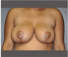Breast Reduction After Photo by Robert Wilcox, MD; Plano, TX - Case 30157