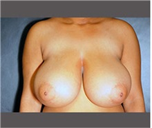 Breast Reduction Before Photo by Robert Wilcox, MD; Plano, TX - Case 30157