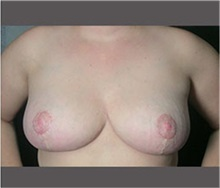 Breast Reduction After Photo by Robert Wilcox, MD; Plano, TX - Case 30160