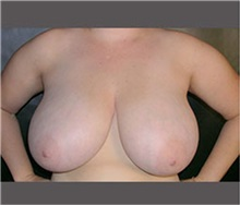 Breast Reduction Before Photo by Robert Wilcox, MD; Plano, TX - Case 30160