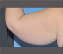 Arm Lift Before Photo by Robert Wilcox, MD; Plano, TX - Case 30163