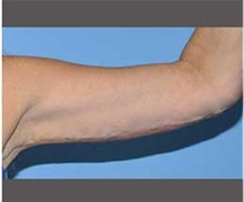 Arm Lift After Photo by Robert Wilcox, MD; Plano, TX - Case 30164
