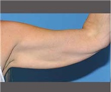 Arm Lift Before Photo by Robert Wilcox, MD; Plano, TX - Case 30164