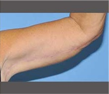Arm Lift After Photo by Robert Wilcox, MD; Plano, TX - Case 30165