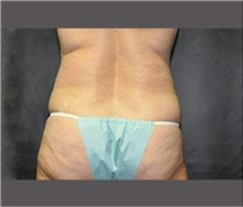 Liposuction Before Photo by Robert Wilcox, MD; Plano, TX - Case 30167