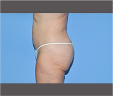 Liposuction After Photo by Robert Wilcox, MD; Plano, TX - Case 30167