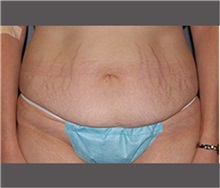 Tummy Tuck Before Photo by Robert Wilcox, MD; Plano, TX - Case 30173
