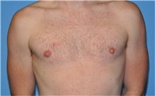 Male Breast Reduction After Photo by Robert Wilcox, MD; Plano, TX - Case 31346