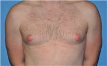Male Breast Reduction Before Photo by Robert Wilcox, MD; Plano, TX - Case 31346