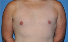 Male Breast Reduction After Photo by Robert Wilcox, MD; Plano, TX - Case 31347