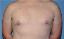 Male Breast Reduction Before Photo by Robert Wilcox, MD; Plano, TX - Case 31347