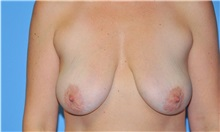 Breast Lift Before Photo by Robert Wilcox, MD; Plano, TX - Case 31459