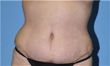 Tummy Tuck After Photo by Robert Wilcox, MD; Plano, TX - Case 31463