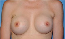 Breast Augmentation After Photo by Robert Wilcox, MD; Plano, TX - Case 31827