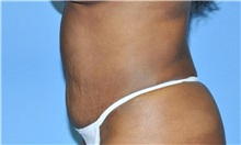 Liposuction After Photo by Robert Wilcox, MD; Plano, TX - Case 33099