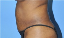 Liposuction Before Photo by Robert Wilcox, MD; Plano, TX - Case 33099