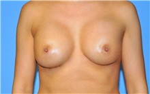 Breast Augmentation After Photo by Robert Wilcox, MD; Plano, TX - Case 35503