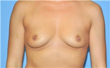 Breast Augmentation Before Photo by Robert Wilcox, MD; Plano, TX - Case 35503