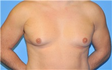 Male Breast Reduction Before Photo by Robert Wilcox, MD; Plano, TX - Case 35504