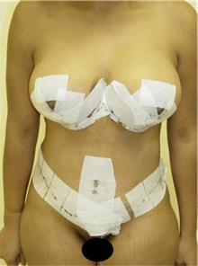 Tummy Tuck After Photo by Kimberly Henry, MD; Greenbrae, CA - Case 38455