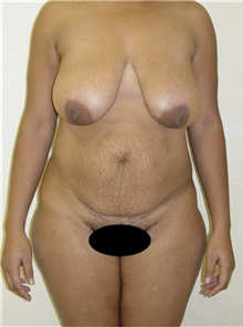 Tummy Tuck Before Photo by Kimberly Henry, MD; Greenbrae, CA - Case 38455